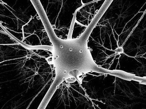 麻省理工学院研究抑制元素1-沉默转录因子:给脑细胞施压有助预防痴呆症