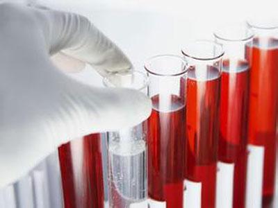 验血可测寿命? 澳大利亚与芬兰新技术最早可提前14年预测死亡
