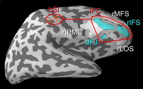 布朗大学科学家研究大脑如何忽略干扰:借此减轻疼痛