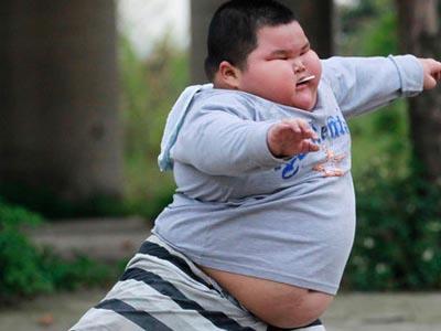 剑桥大学: 肥胖症不仅有害身体 更伤害智力