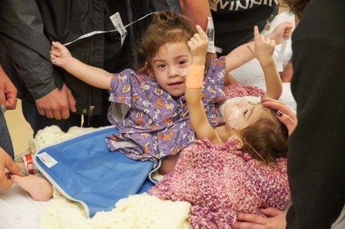 斯坦福儿童医院成功分离连体女童