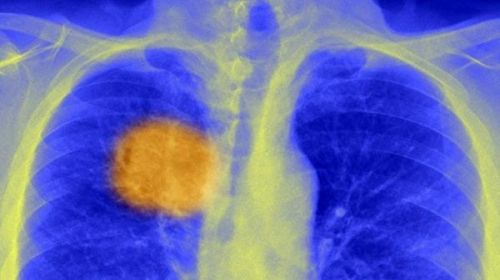 """伦敦大学学院(UCL)发现""""阿喀琉斯之踵"""":让体内的癌细胞无处可藏"""