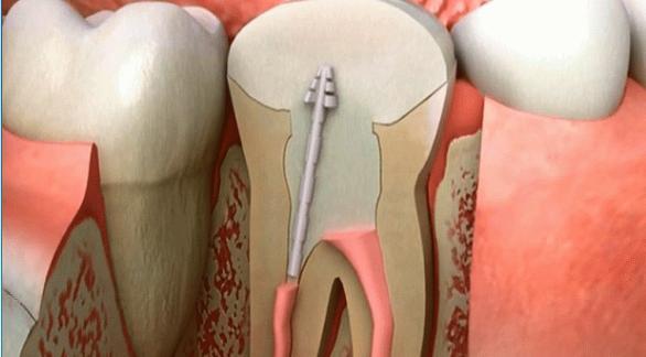哈佛大学和诺丁汉大学科学家发明可刺激牙齿再生的生物材料