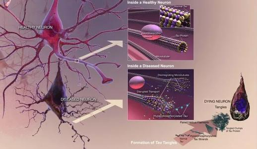 科学家发现新型神经保护药物,不消除β淀粉样蛋白也能延缓阿尔兹海默病进展