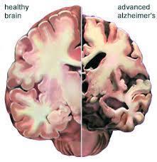 安定类药物使阿尔茨海默病死亡率增加40%