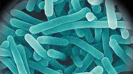 威斯康辛大学:未经高温消毒奶制品、生豆芽、熟肉恐致妊娠早期流产风险