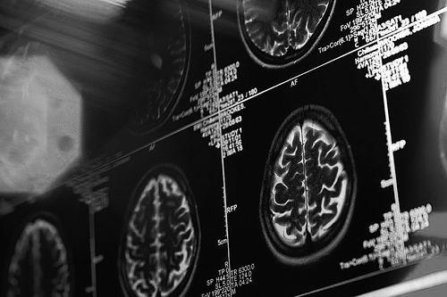 斯坦福大学:扫描大脑就能预测未来