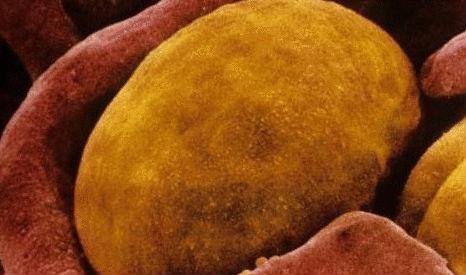 《细胞》:新研究发现棕色脂肪能控制食欲