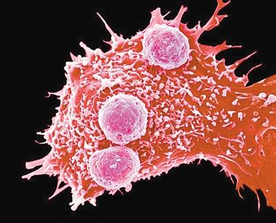 宾夕法尼亚大学首例CRISPR抗癌人体试验即将开展