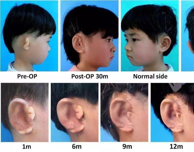 中国国家工程研究中心:3D打印培育人类耳朵并成功移植