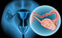 宫颈癌(HPV)疫苗:打,还是不打?