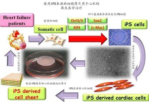 日本大阪大学采用诱导的多潜能干细胞(IPS)治疗缺血性心肌病