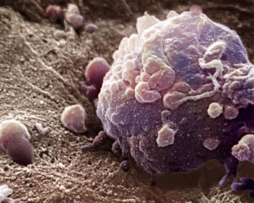 以色列魏茨曼科学研究所:新方法有望提高黑色素瘤免疫疗法治愈率
