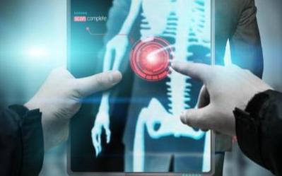 GHR:人工智能诊断肺癌超越放射学专家