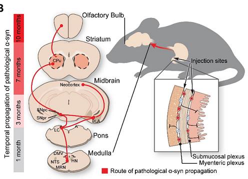 《神经元》:霍普金斯大学的新研究发现帕金森病起源于肠道